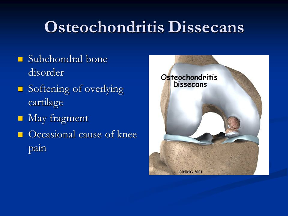 Osteochondritis Dissecans Subchondral bone disorder Subchondral bone disorder Softening of overlying cartilage Softening of overlying cartilage May fr