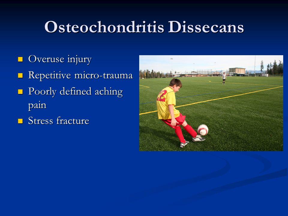 Osteochondritis Dissecans Overuse injury Overuse injury Repetitive micro-trauma Repetitive micro-trauma Poorly defined aching pain Poorly defined achi