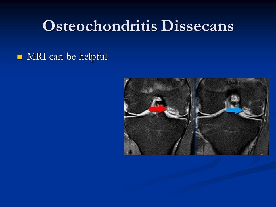 Osteochondritis Dissecans MRI can be helpful MRI can be helpful