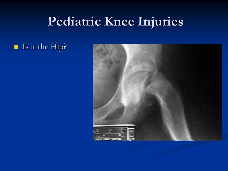 Pediatric Knee Injuries Pediatric Knee Injuries Is it the Hip? Is it the Hip?