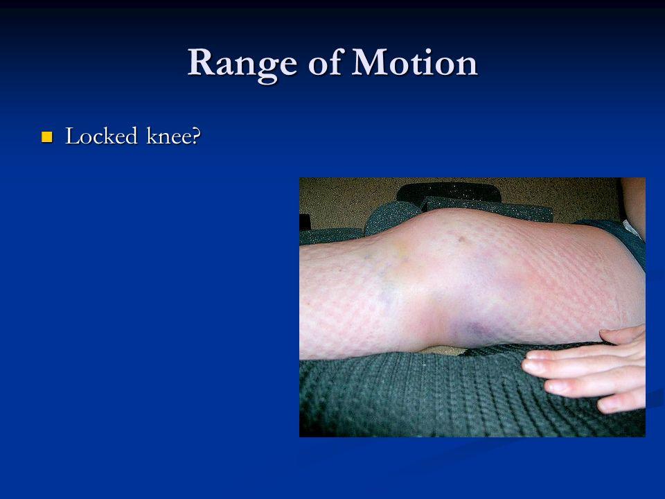 Range of Motion Locked knee? Locked knee?