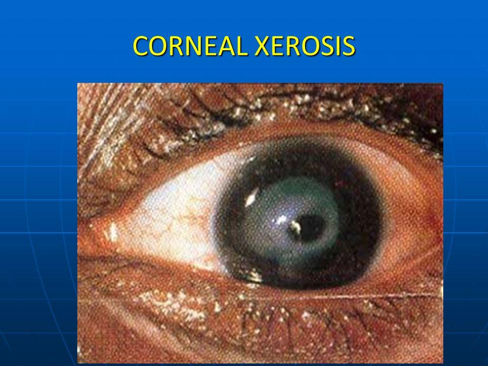 CORNEAL XEROSIS