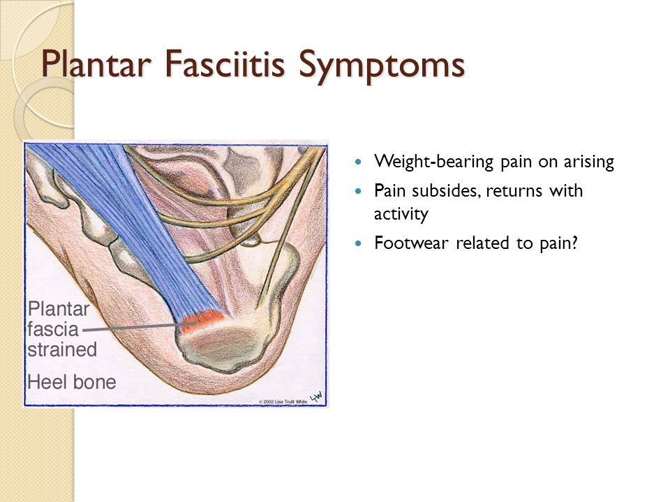 Plantar Fasciitis Symptoms Weight-bearing pain on arising Pain subsides, returns with activity Footwear related to pain