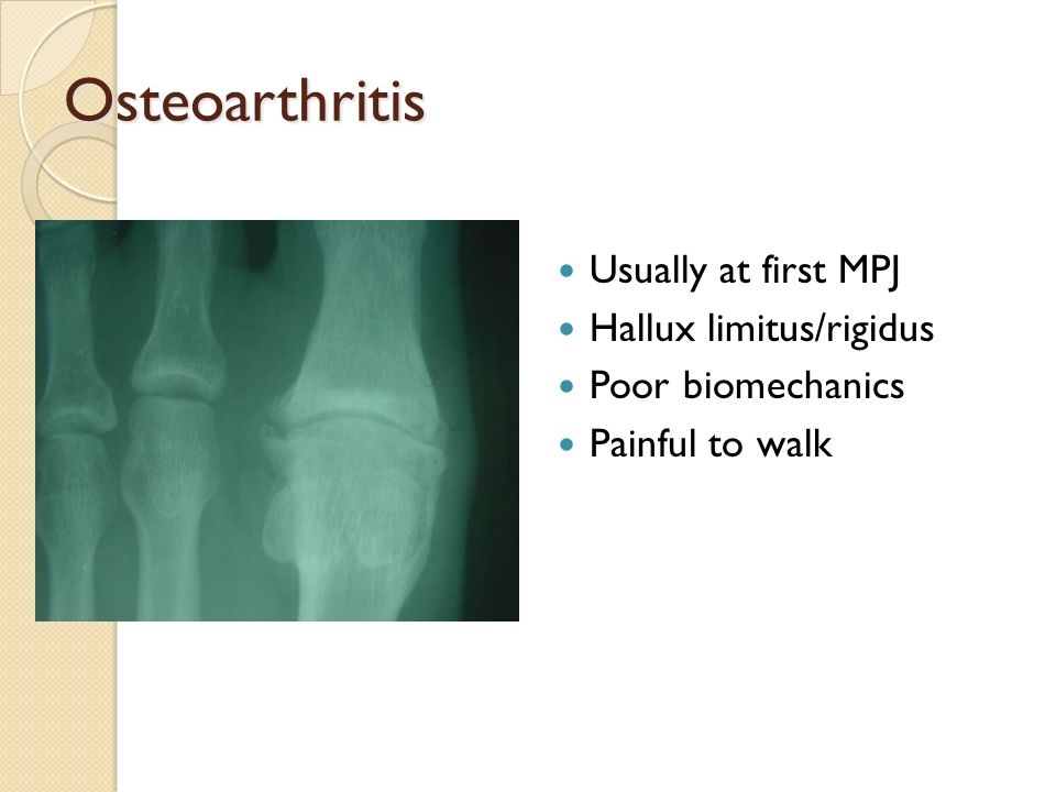 Osteoarthritis Usually at first MPJ Hallux limitus/rigidus Poor biomechanics Painful to walk