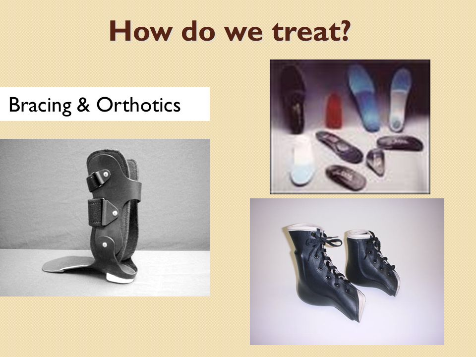 How do we treat Bracing & Orthotics
