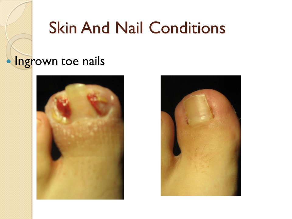 Skin And Nail Conditions Ingrown toe nails