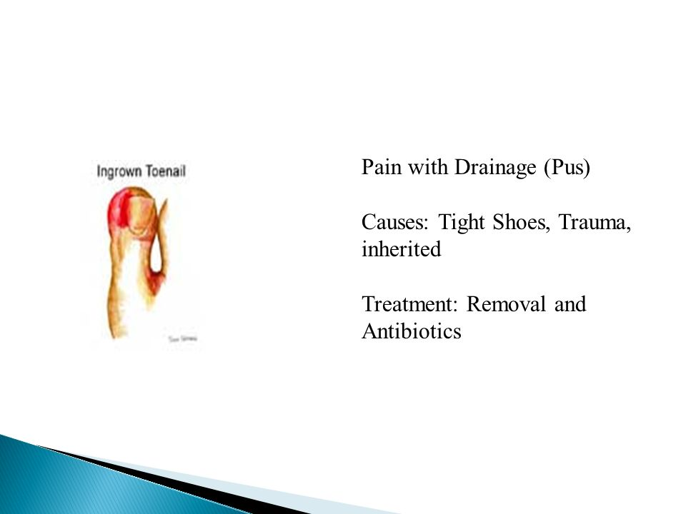 Pain with Drainage (Pus) Causes: Tight Shoes, Trauma, inherited Treatment: Removal and Antibiotics