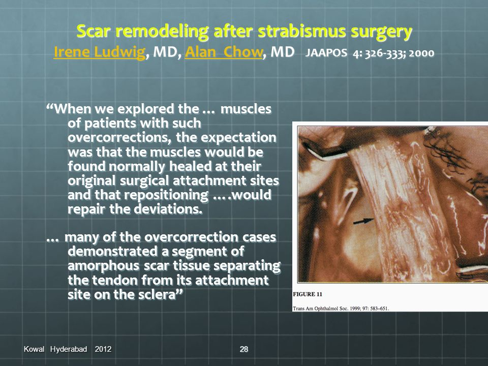 Scar remodeling after strabismus surgery Irene Ludwig, MD, Alan Chow, MD JAAPOS 4: 326-333; 2000 Irene LudwigAlan Chow Irene LudwigAlan Chow When we e