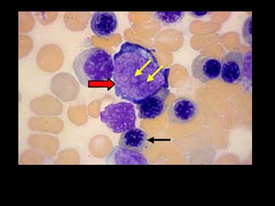 Megakaryoblasts.Megakaryoblasts are located in the bone marrow near the sinusoids.