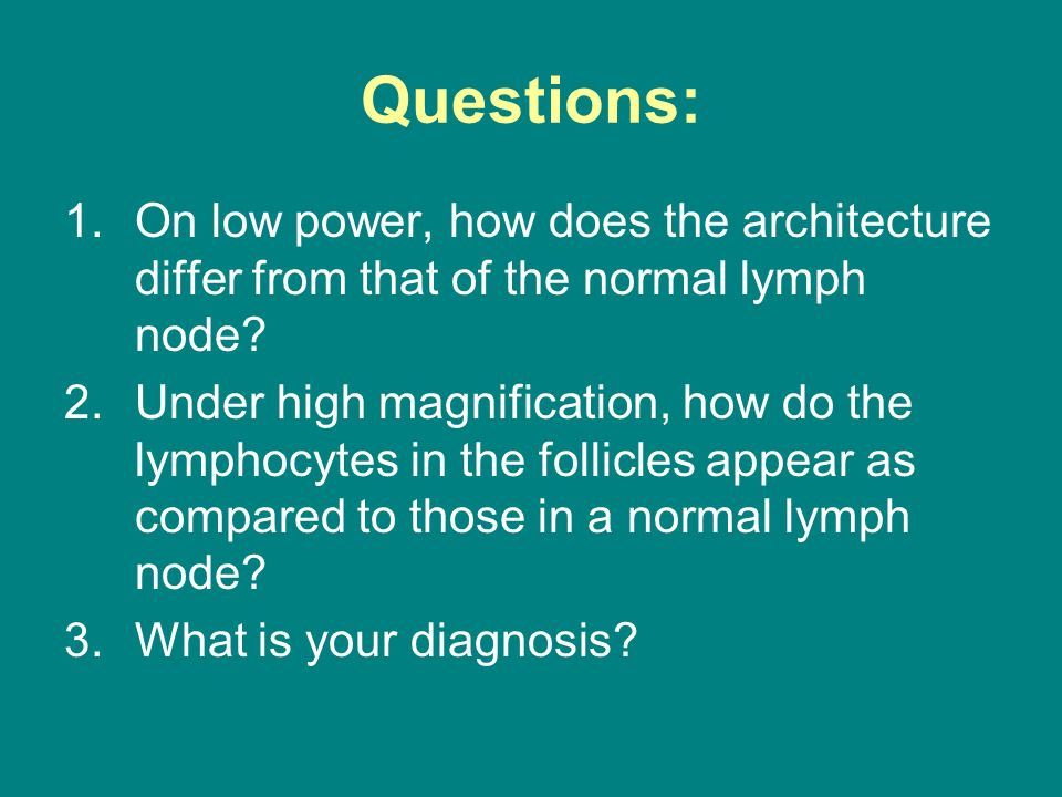 Questions: 1.On low power, how does the architecture differ from that of the normal lymph node? 2.Under high magnification, how do the lymphocytes in