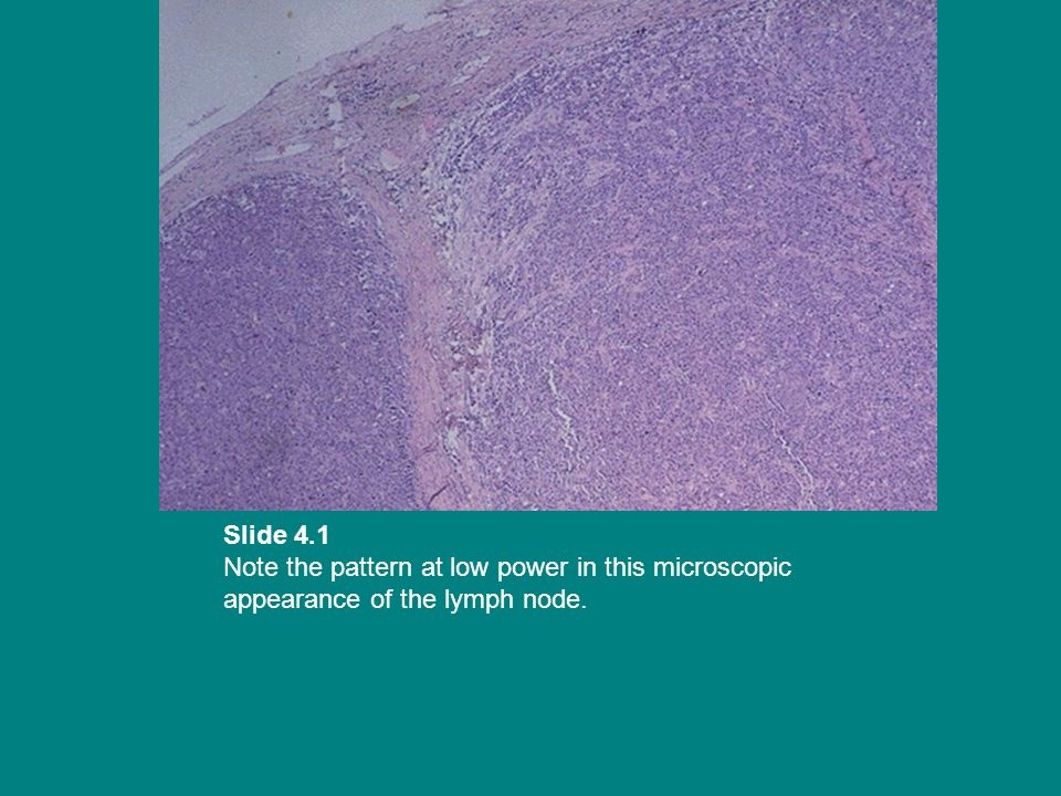 Slide 4.1 Note the pattern at low power in this microscopic appearance of the lymph node.