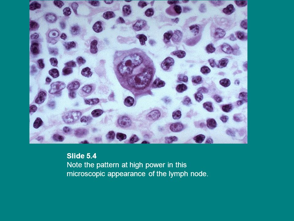 Slide 5.4 Note the pattern at high power in this microscopic appearance of the lymph node.