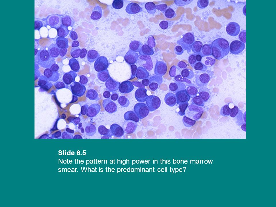 Slide 6.5 Note the pattern at high power in this bone marrow smear. What is the predominant cell type?