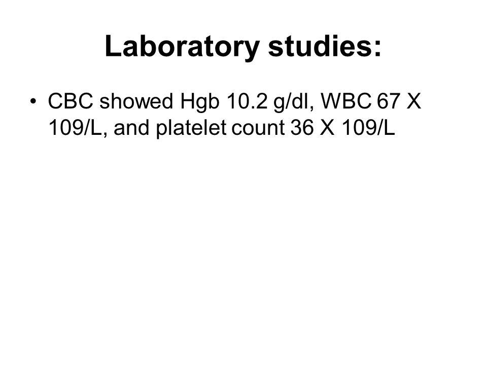 Laboratory studies: CBC showed Hgb 10.2 g/dl, WBC 67 X 109/L, and platelet count 36 X 109/L