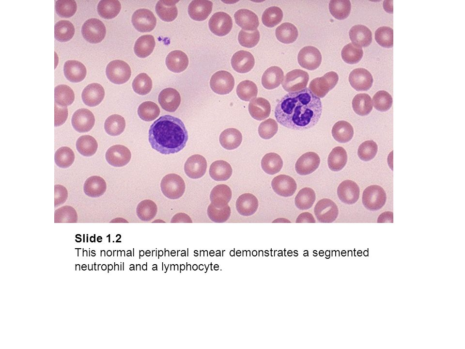 Slide 3.1 This peripheral smear demonstrates atypical lymphocytes.