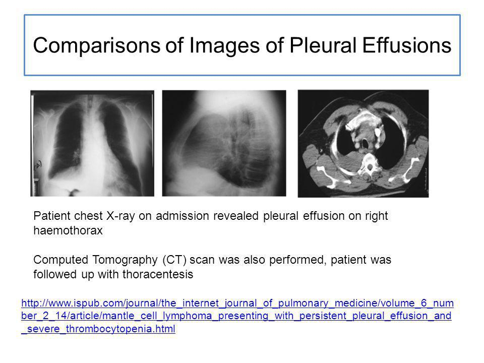 Comparisons of Images of Pleural Effusions Patient chest X-ray on admission revealed pleural effusion on right haemothorax Computed Tomography (CT) scan was also performed, patient was followed up with thoracentesis http://www.ispub.com/journal/the_internet_journal_of_pulmonary_medicine/volume_6_num ber_2_14/article/mantle_cell_lymphoma_presenting_with_persistent_pleural_effusion_and _severe_thrombocytopenia.html