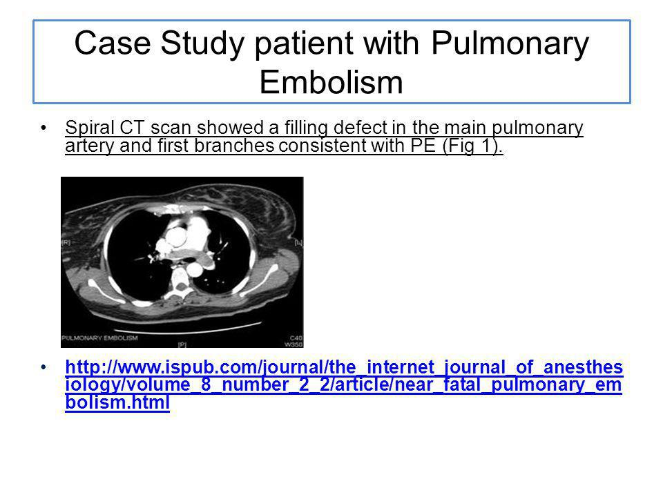 Case Study patient with Pulmonary Embolism Spiral CT scan showed a filling defect in the main pulmonary artery and first branches consistent with PE (Fig 1).
