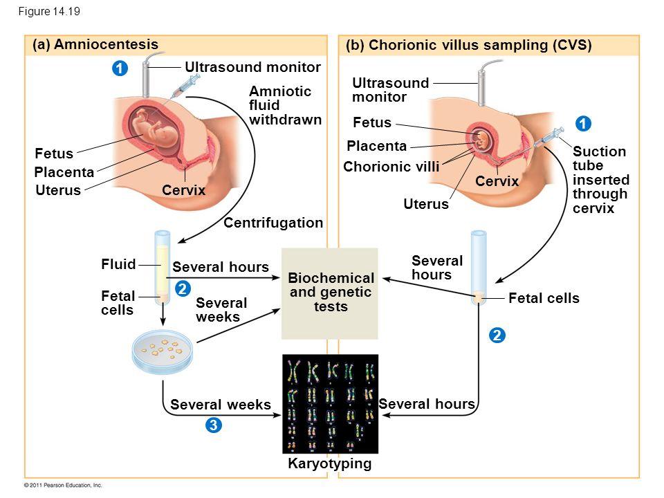 Figure 14.19 (a) Amniocentesis (b) Chorionic villus sampling (CVS) Ultrasound monitor Amniotic fluid withdrawn Fetus Placenta UterusCervix Centrifugat