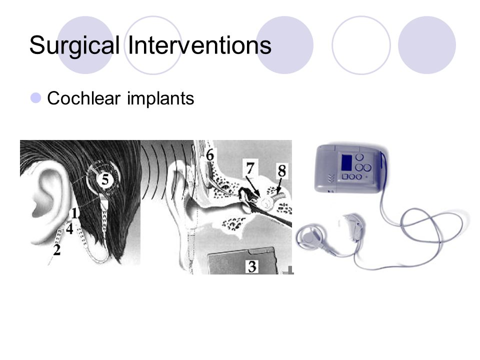 Surgical Interventions Cochlear implants