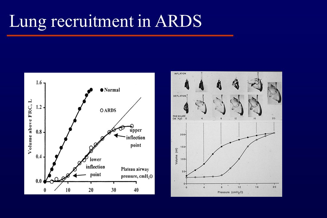 Oxygenation Index PaO 2 /FiO 2 MAP x FiO 2 x 100 PaO 2 < 200 = ARDS >15 = severe ARDS Markers of oxygenation defect