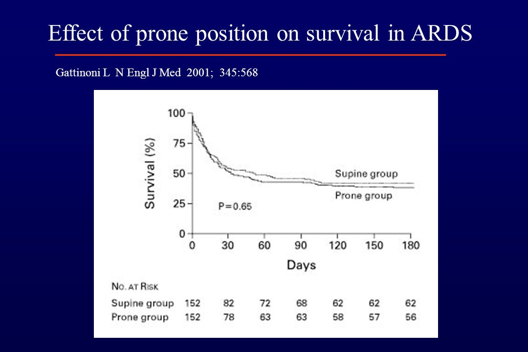 Effect of prone position on survival in ARDS Gattinoni L N Engl J Med 2001; 345:568