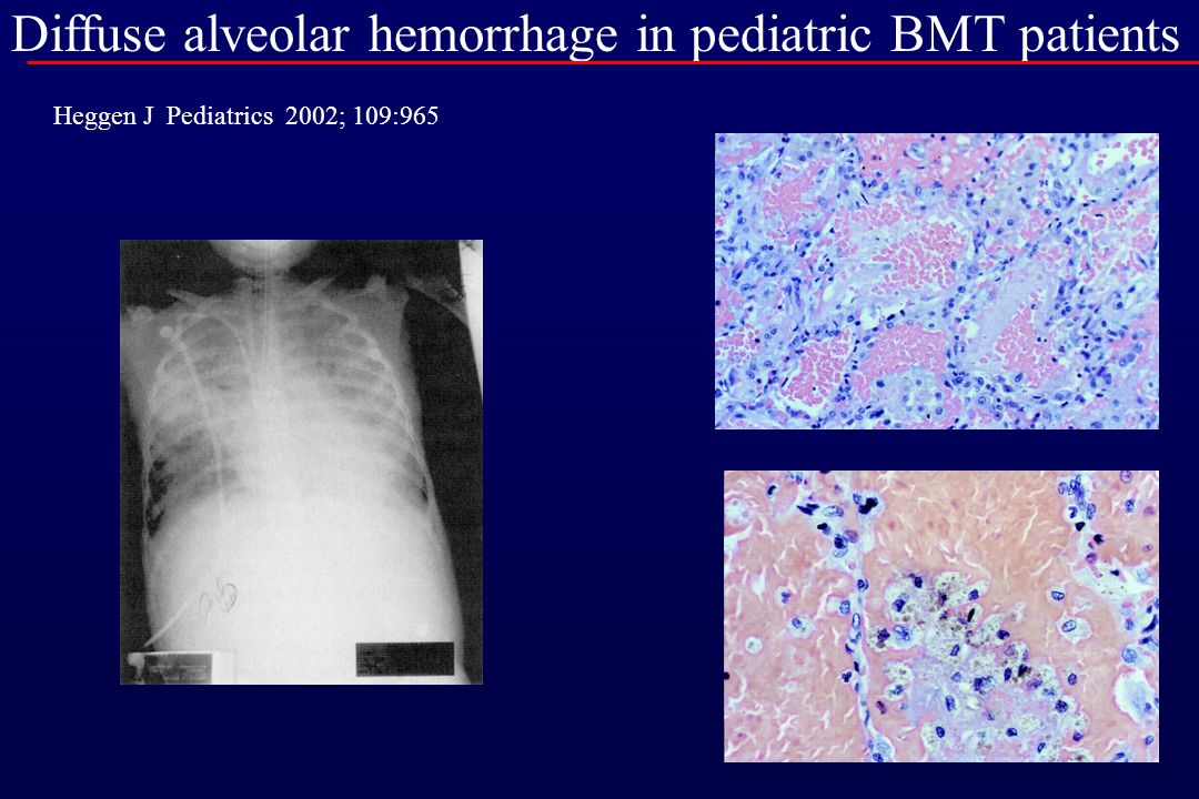 BAL in ventilated and non-ventilated in children after BMT Ben-Ari J Bone Marrow Transplantation 2001; 27:191 non-ventilated ventilated