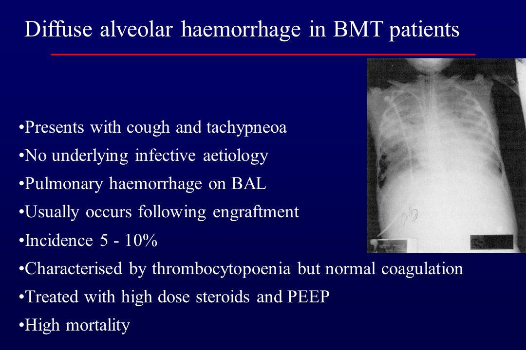 Diffuse alveolar hemorrhage in pediatric BMT patients Heggen J Pediatrics 2002; 109:965