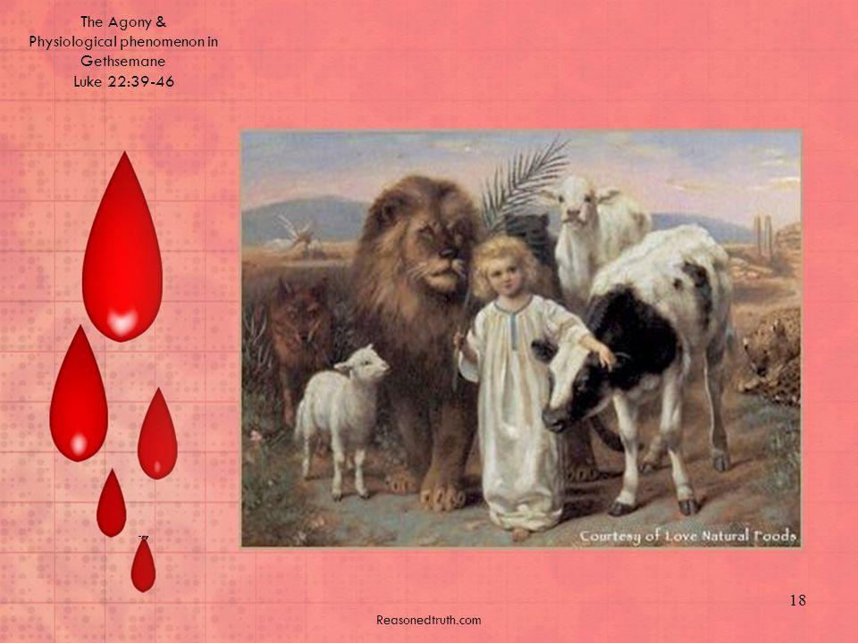 The Agony & Physiological phenomenon in Gethsemane Luke 22:39-46 Reasonedtruth.com 18