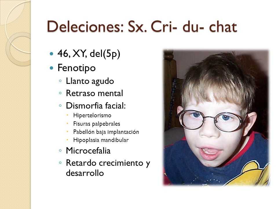 Deleciones: Sx. Cri- du- chat 46, XY, del(5p) Fenotipo Llanto agudo Retraso mental Dismorfia facial: Hipertelorismo Fisuras palpebrales Pabellón baja