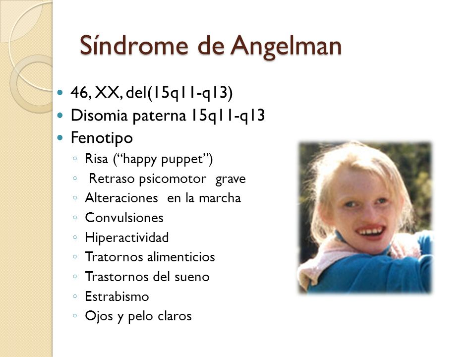 Síndrome de Angelman 46, XX, del(15q11-q13) Disomia paterna 15q11-q13 Fenotipo Risa (happy puppet) Retraso psicomotor grave Alteraciones en la marcha