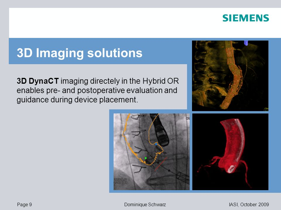 Page 9IASI, October 2009Dominique Schwarz 11,20 8,80 5,5,1 4,4 1,2 1,6 8,0 8,6 11,60 6,71 11,89 3D DynaCT imaging directely in the Hybrid OR enables p