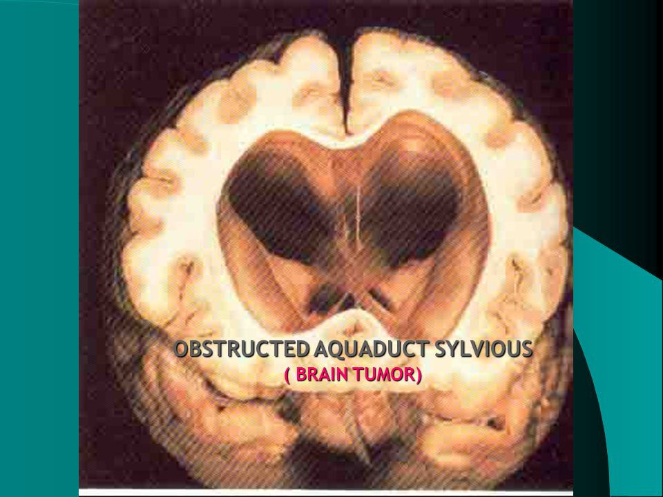 OBSTRUCTED AQUADUCT SYLVIOUS ( BRAIN TUMOR)