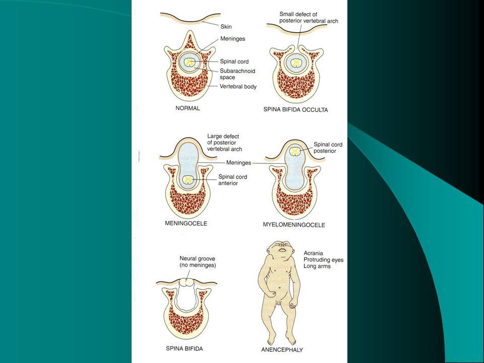 CENTRAL CHROMATOLYSIS ANTERETROGADE DEGENERATION