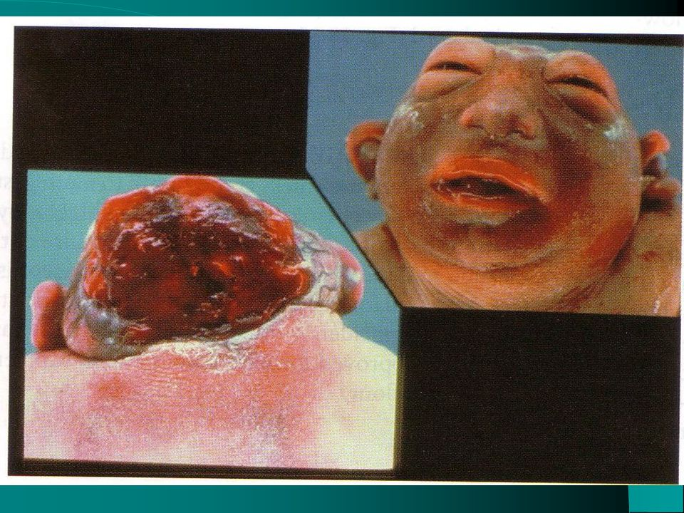 OBSTRUCTIVE HYDROCEPHALUS ( GLIAL TISSUE POST VIRAL INFECTION)