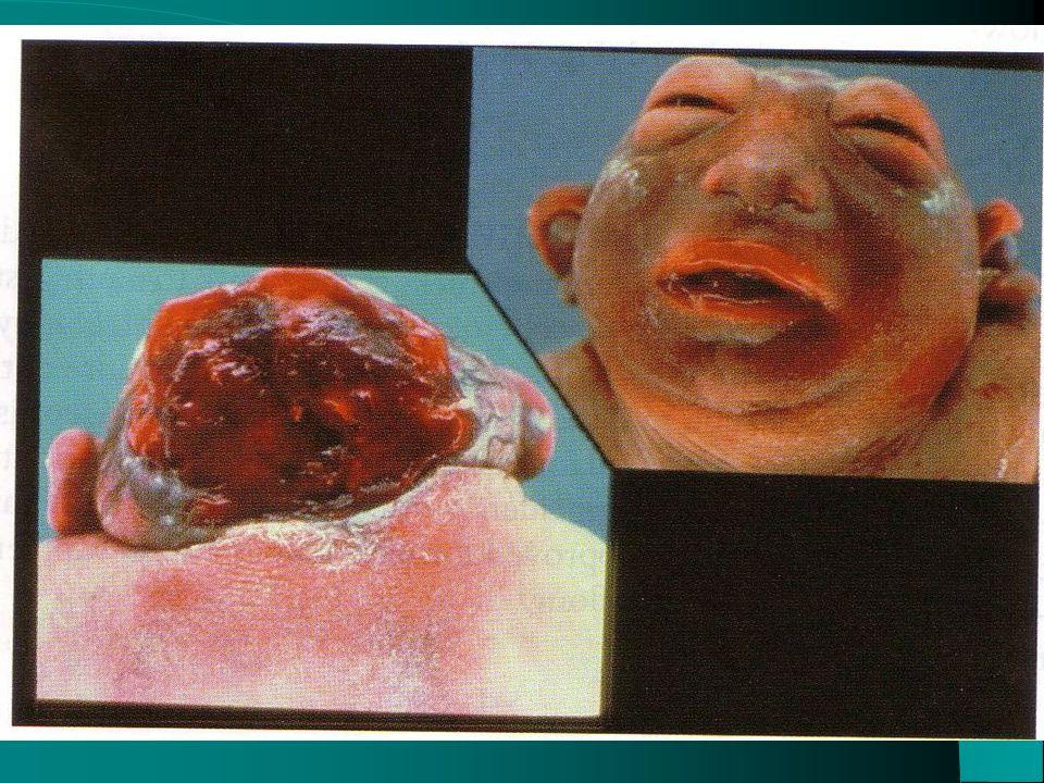 ACTIVATED MICROGLIA MYELINOLYSIS