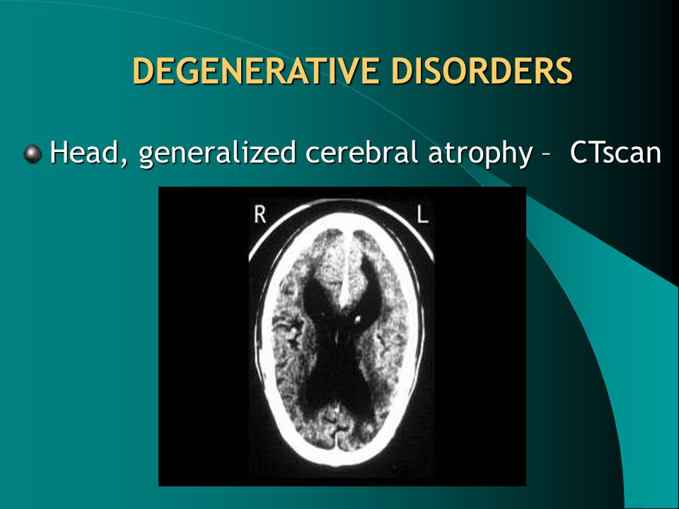 Head, generalized cerebral atrophy – CTscan DEGENERATIVE DISORDERS