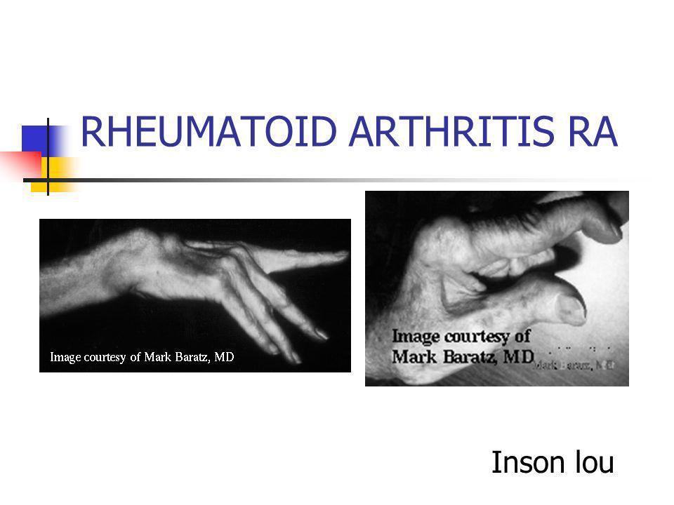 RHEUMATOID ARTHRITIS RA Inson lou