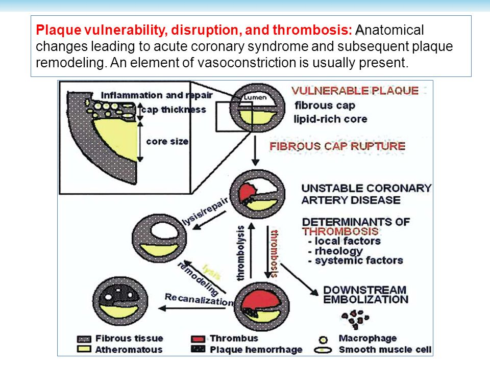 A Plaque vulnerability, disruption, and thrombosis: Anatomical changes leading to acute coronary syndrome and subsequent plaque remodeling. An element