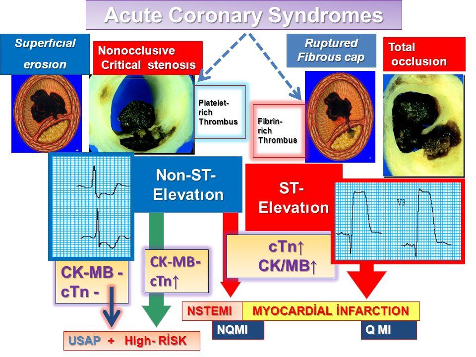Non-ST- Elevatıon Elevatıon ST- Elevatıon Acute Coronary Syndromes USAP + High- RİSK NQMI Q MI NSTEMI MYOCARDİAL İNFARCTION Superfıcıalerosıon Rupture