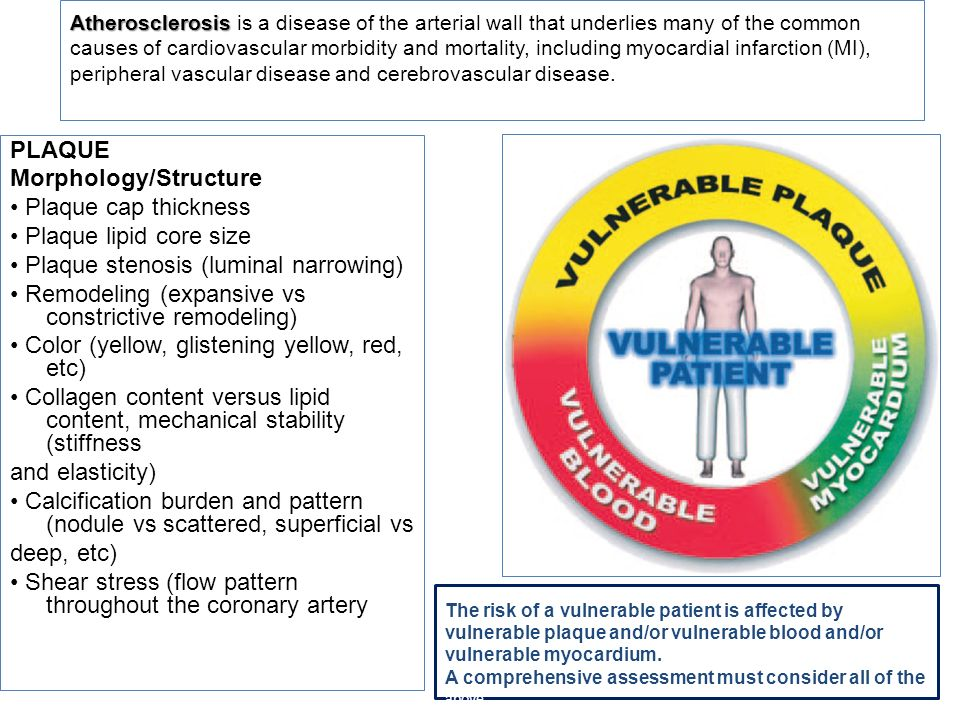 Atherosclerosis Atherosclerosis is a disease of the arterial wall that underlies many of the common causes of cardiovascular morbidity and mortality,