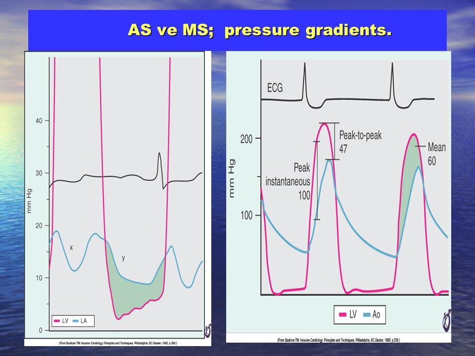 AS ve MS; pressure gradients. AS ve MS; pressure gradients.