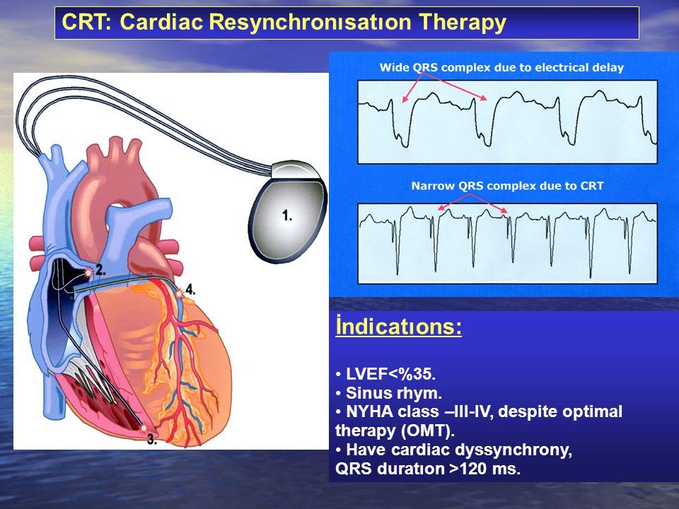 CRT: Cardiac Resynchronısatıon Therapy İndicatıons: LVEF<%35. Sinus rhym. NYHA class –III-IV, despite optimal therapy (OMT). Have cardiac dyssynchrony