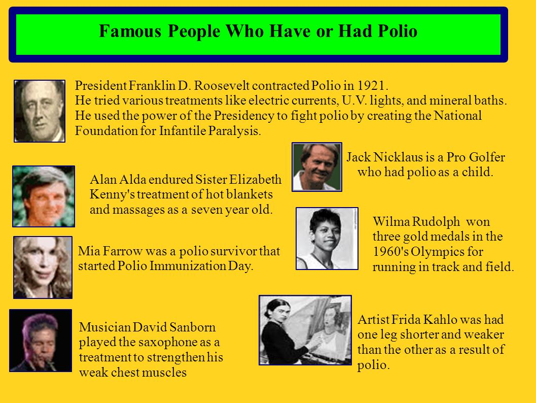 Famous People Who Have or Had Polio President Franklin D. Roosevelt contracted Polio in 1921. He tried various treatments like electric currents, U.V.
