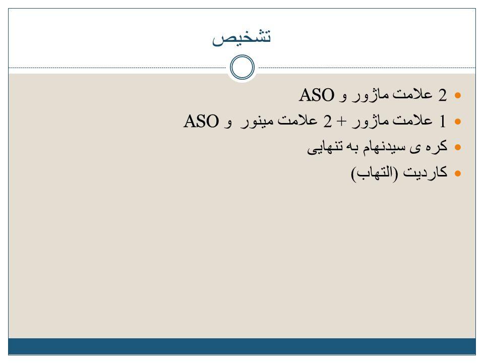 تشخیص 2 علامت ماژور و ASO 1 علامت ماژور + 2 علامت مینور و ASO کره ی سیدنهام به تنهایی کاردیت ( التهاب )