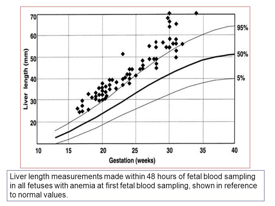 Liver length measurements made within 48 hours of fetal blood sampling in all fetuses with anemia at first fetal blood sampling, shown in reference to