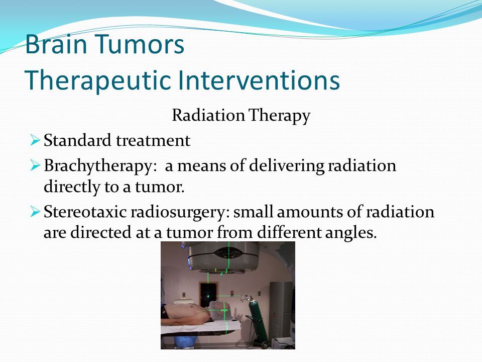 Brain Tumors Therapeutic Interventions Radiation Therapy Standard treatment Brachytherapy: a means of delivering radiation directly to a tumor. Stereo