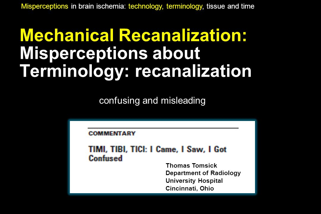 Mechanical Recanalization: Misperceptions about Terminology: recanalization Misperceptions in brain ischemia: technology, terminology, tissue and time