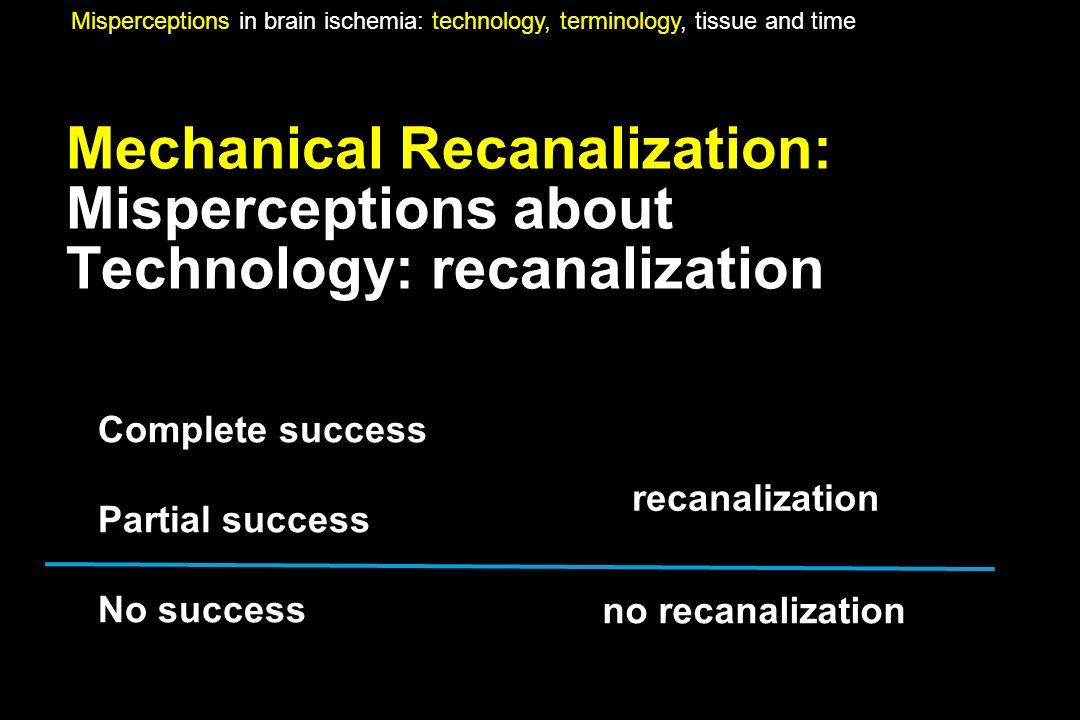 Mechanical Recanalization: Misperceptions about Technology: recanalization Complete success Partial success No success Misperceptions in brain ischemi