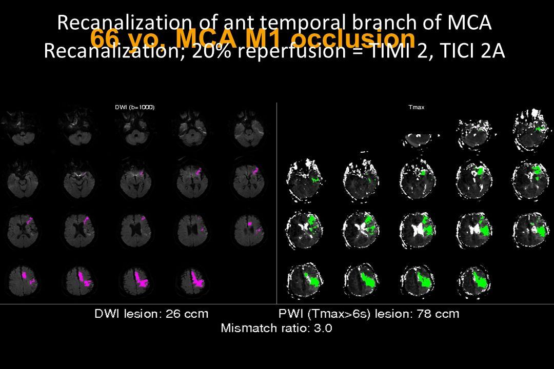 66 yo, MCA M1 occlusion Recanalization of ant temporal branch of MCA Recanalization; 20% reperfusion = TIMI 2, TICI 2A