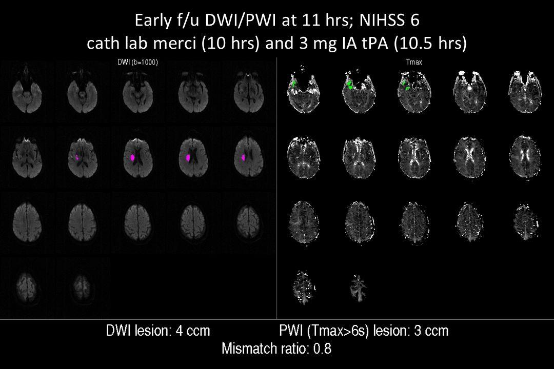 Early f/u DWI/PWI at 11 hrs; NIHSS 6 cath lab merci (10 hrs) and 3 mg IA tPA (10.5 hrs)